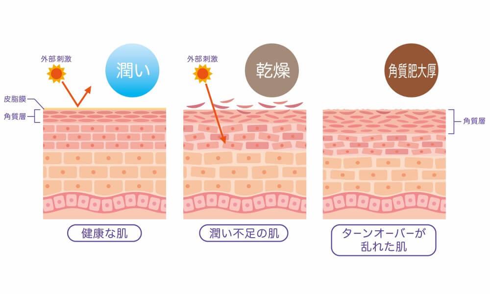 ターンオーバーが乱れた肌は、角質が肥大したりシミが沈着して出ていかなかったりします。